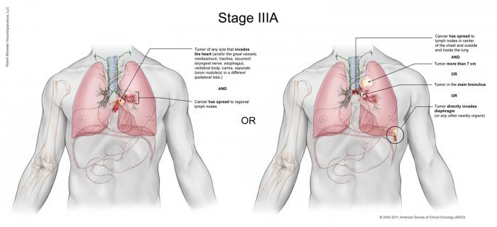 Lung Cancer Stage IIIA