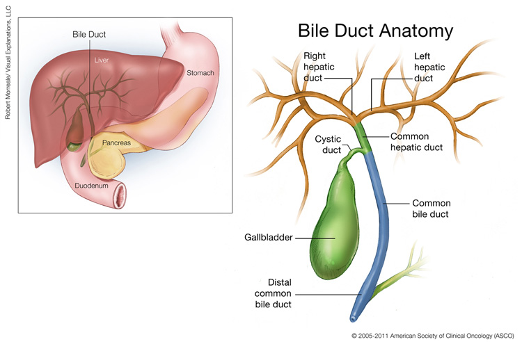 Bile Duct Cancer Cholangiocarcinoma Medical Illustrations