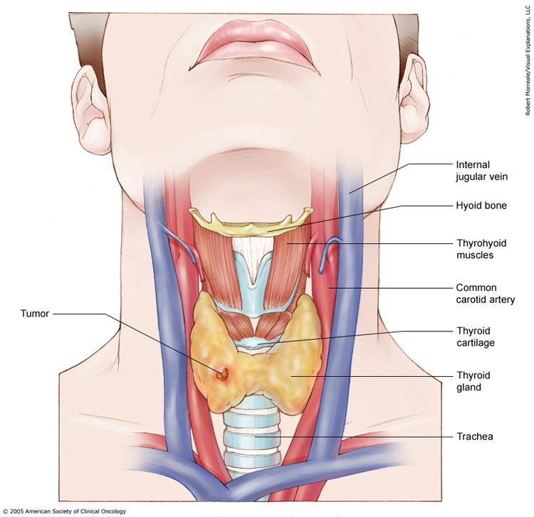 Thyroid Cancer Stages Cancer Net
