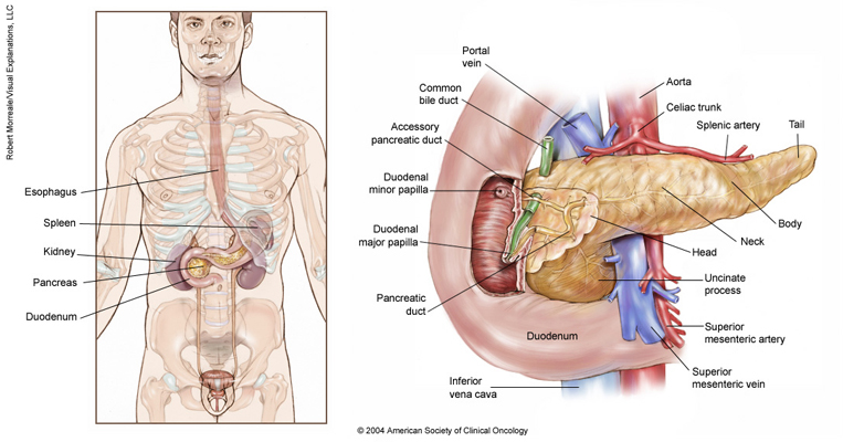 Neuroendocrine Tumor Of The Pancreas Medical Illustrations Cancer