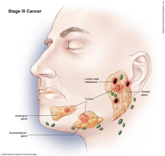 Salivary Gland Cancer Stage III