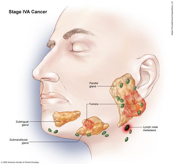 Salivary Gland Cancer Stage IVA