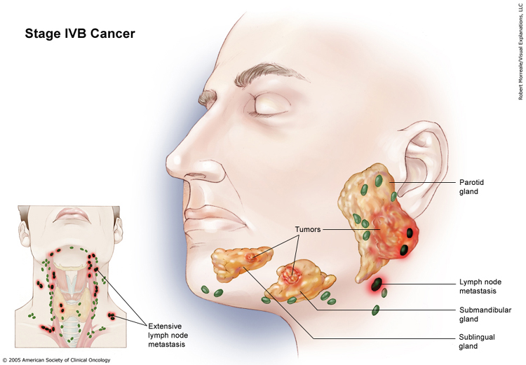 salivary gland cancer: stages and grades | cancer, Skeleton