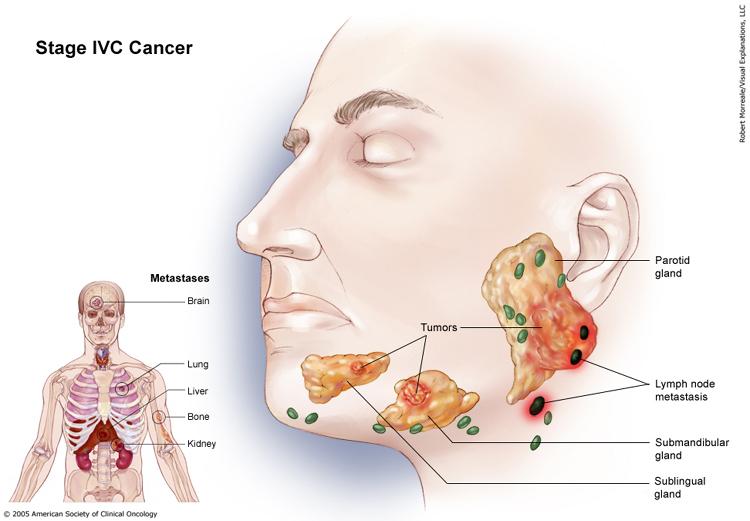 Salivary Gland Cancer Stage IVC
